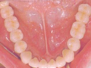 治療後(下顎)