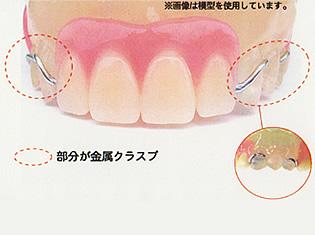 従来の入れ歯02