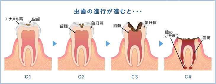 虫歯の進行が進むと・・・