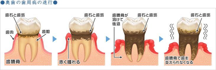 奥歯の歯周病の進行