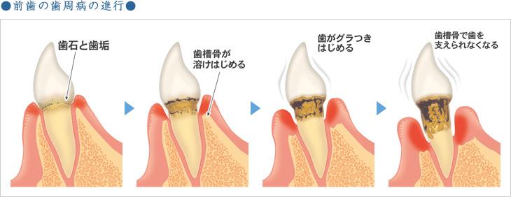 前歯の歯周病の進行